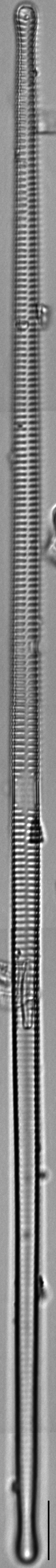 Ulnaria delicatissima LM15