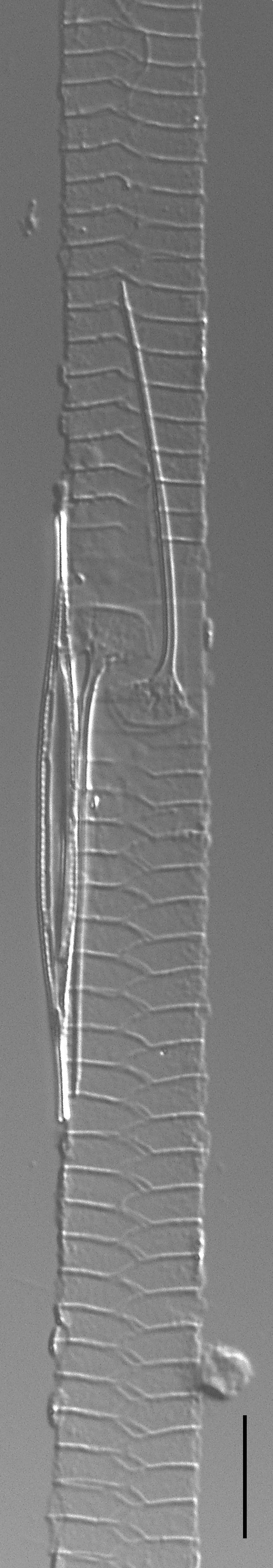 Urosolenia Eriensis Lm7B