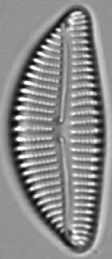Encyonema auerswaldii LM1