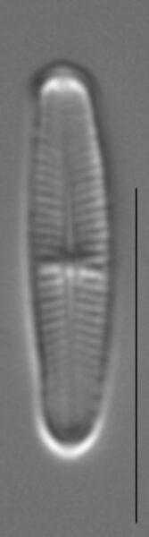 Achnanthidium minutissimum LM3
