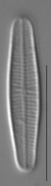 Achnanthidium minutissimum LM4