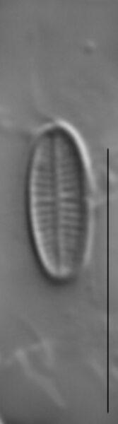 Achnanthidium minutissimum LM5