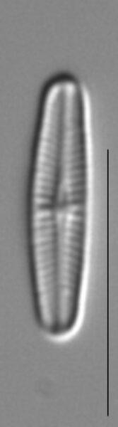 Achnanthidium minutissimum LM6
