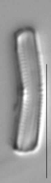Achnanthidium minutissimum LM7