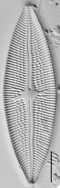 Aneumastus carolinianus LM1