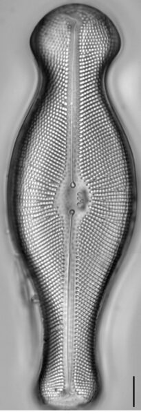 Didymosphenia geminata LM1