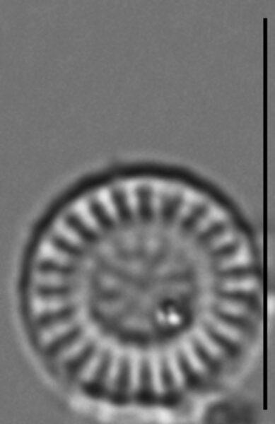 Discostella stelligera LM7