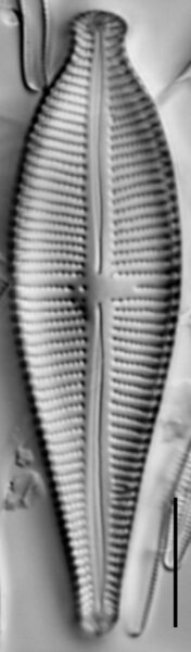 Gomphonema sphaerophorum LM2