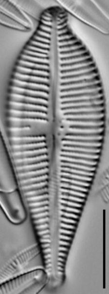 Gomphonema sphaerophorum LM5