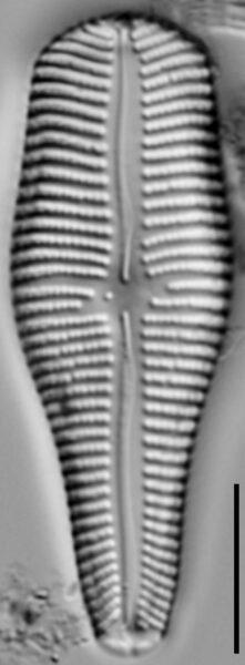 Gomphonema turgidum LM2
