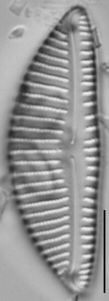 Encyonema minutum var pseudogracilis LM1