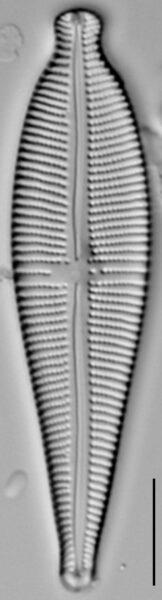Gomphonema sphaerophorum LM7