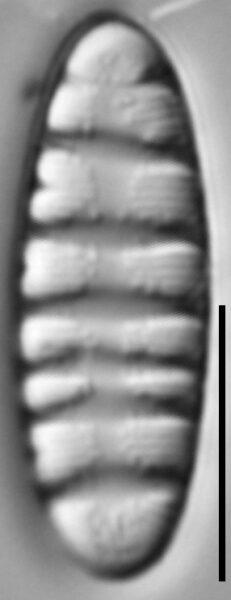 Tetracyclus rupestris LM1
