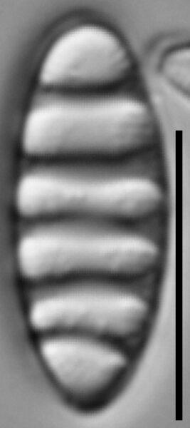 Tetracyclus rupestris LM2