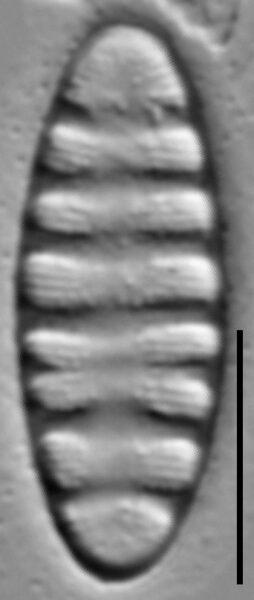 Tetracyclus rupestris LM4