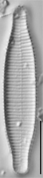 Fragilariforma virescens LM4