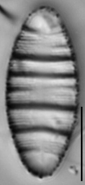 Odontidium hyemale LM2