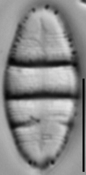 Odontidium hyemale LM3