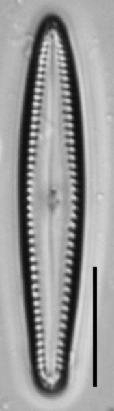Gomphonema insularum LM1