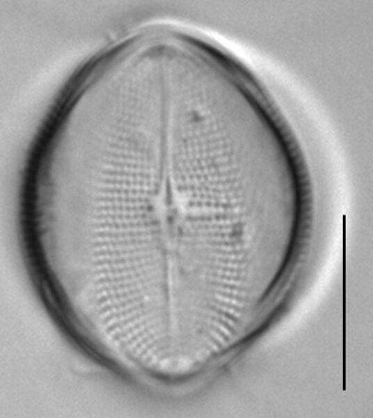 Cocconeis pediculus LM2