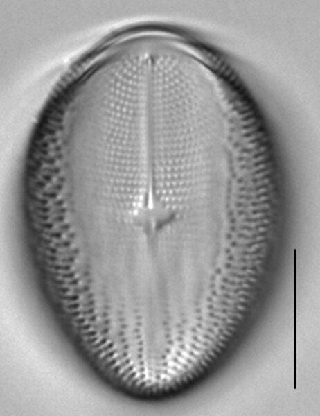 Cocconeis pediculus LM3