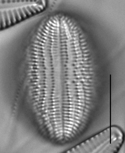 Cocconeis pediculus LM5