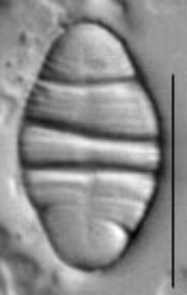 Odontidium mesodon LM1