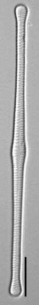 Tabellaria flocculosa LM7
