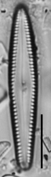 Gomphonema insularum LM2