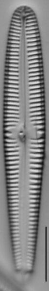Gomphonema californicum LM3