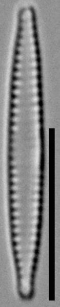 Fragilaria pennsylvanica LM4