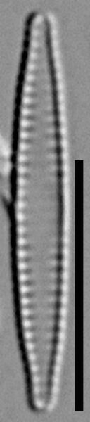 Fragilaria pennsylvanica LM5