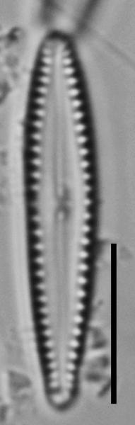 Gomphonema insularum LM5