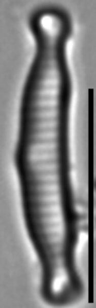 Eunotia microcephala LM2