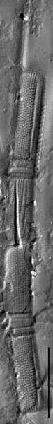 Aulacoseira herzogii LM7