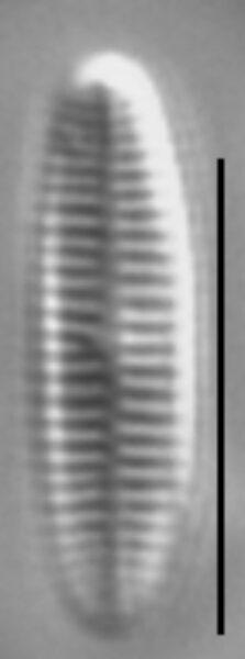 Achnanthidium atomus LM1