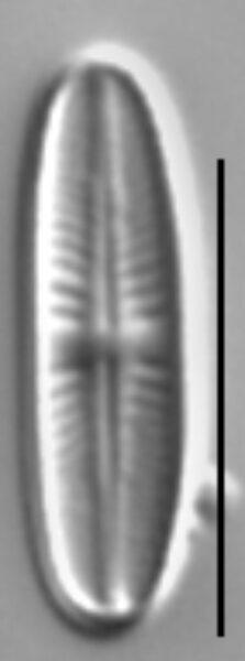 Achnanthidium atomus LM3