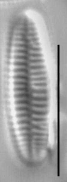 Achnanthidium atomus LM4