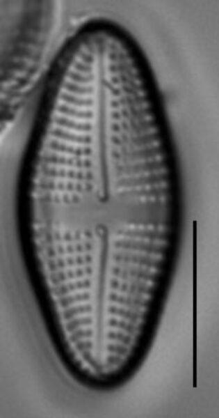 Achnanthes longboardia LM5