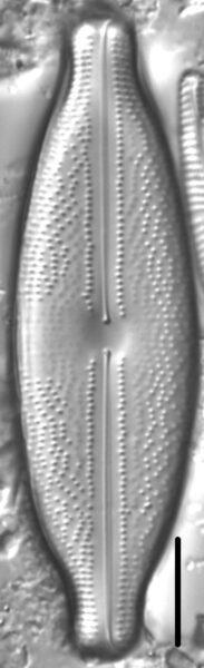 Anomoeoneis sphaerophora LM3