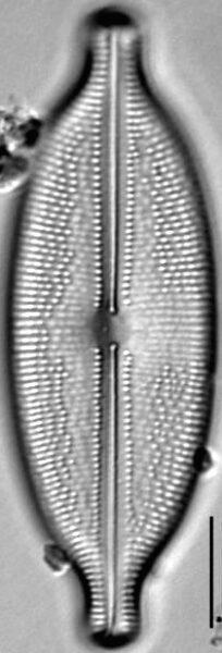 Anomoeoneis Sphaerophora LM9