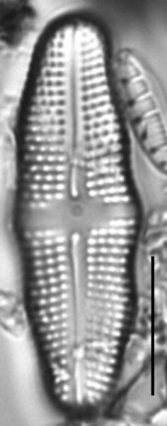 Achnanthes undulorostrata LM5