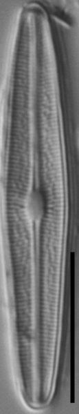 Brachysira subtile LM3