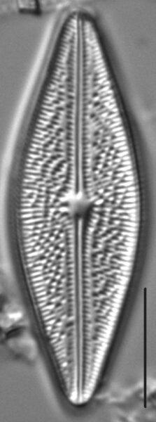 Brachysira arctoborealis LM2