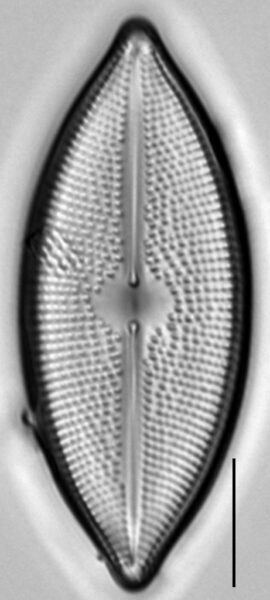 Lacustriella lacustris LM1
