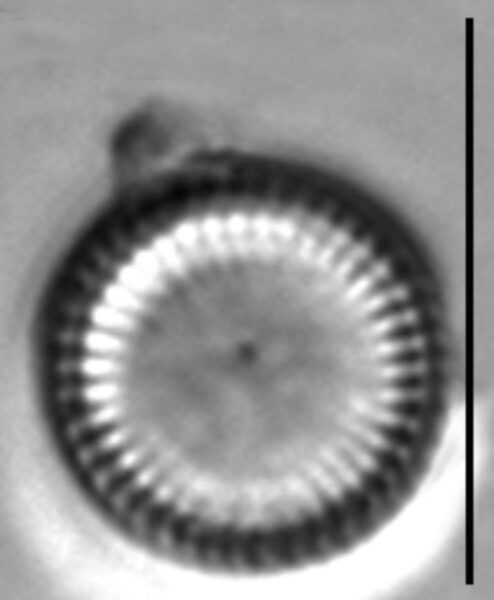 Lindavia delicatula LM1