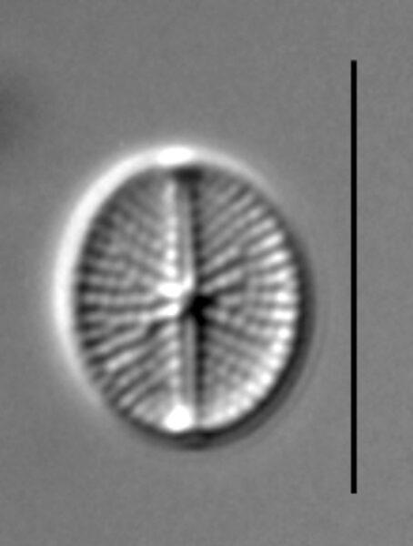 Cavinula pseudoscutiformis LM5
