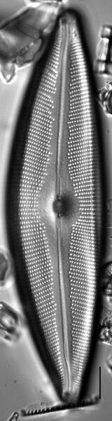 Cymbopleura crassipunctata LM3