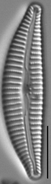 Cymbella Affiniformis2