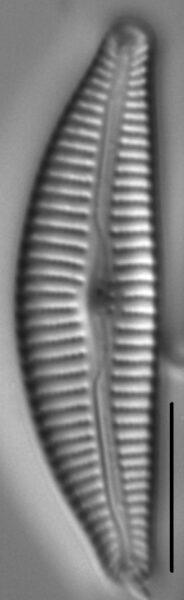 Cymbella Affiniformis3